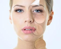 lidia-rasero-nutricion-bienestar-belleza-tratamientos-belleza-mesoterapia-facial